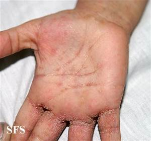 Itchy Palms (Inside of Hand) Causes and Pictures ...