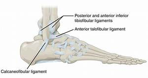 Sprained Ankle  Official Recovery Guide