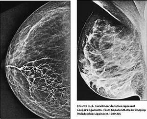 Breast Structure - Human Lactation