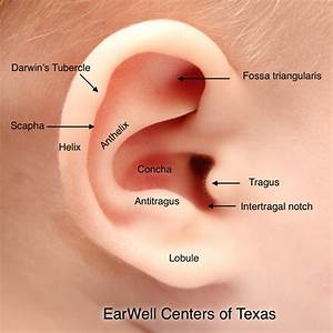 Infant Ear Deformities And Malformations