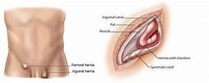 Inguinal Hernia  Diagnosis  U0026 Treatment