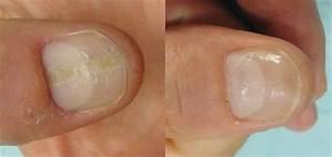 Picking Cuticles Damaged Nail Bed