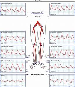 Noninvasive Physiologic Vascular Studies  A Guide To
