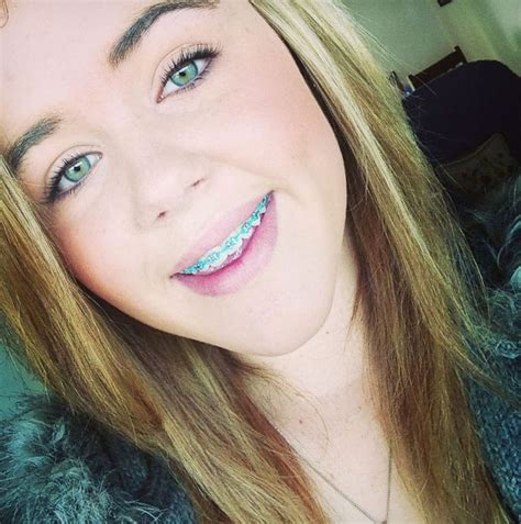 Blonde Teen Braces Blowjob
