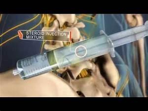 Injections  U00e9pidurales De St U00e9ro U00efdes Pour La Douleur De Dos Et La Douleur De Jambe