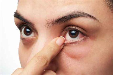 เบาหวานขึ้นตา - อาการ, สาเหตุ, การรักษา - พบแพทย์