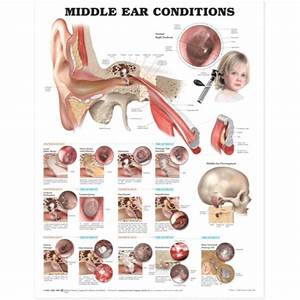 Middle Ear Conditions Anatomical Chart  U2014 Medshop Australia