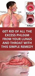 Get Rid Of All The Excess Phlegm From Your Lungs And