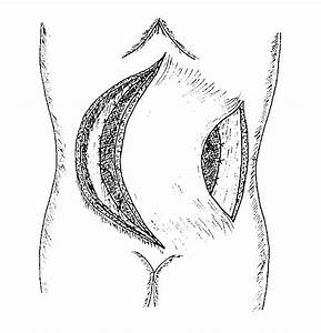 A Bipedicle Anterior Abdominal Skin Flap Is Made By