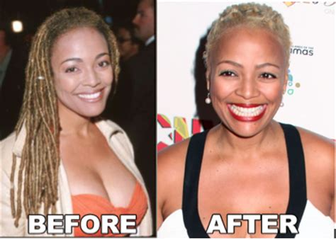 foto de Kim Fields Plastic surgery Before and After Celebrity