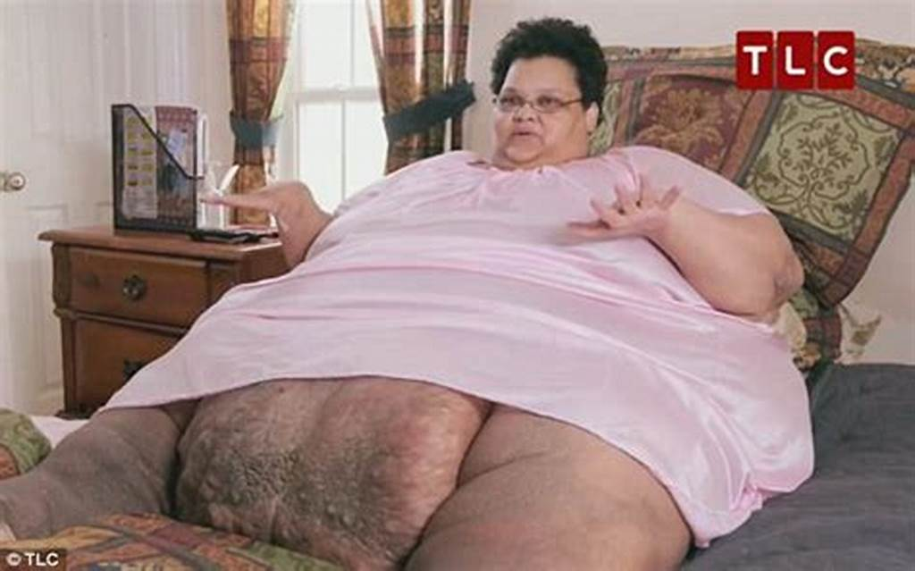 #Morbidly #Obese #750Lb #Woman #Has #Massive #Fatty #Lump #Weighing
