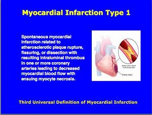 Third Universal Definition Of Myocardial Infarction   Type