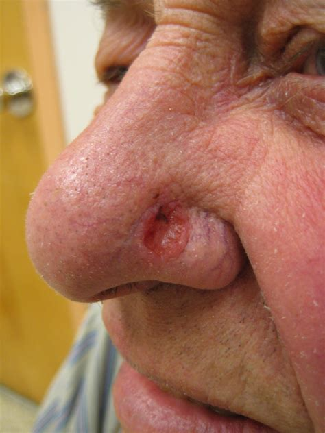 Image Gallery Hairy Human Nose