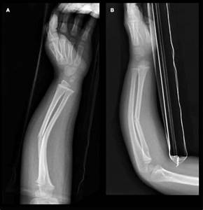 Greenstick Fracture - Definition, Causes and Treatment
