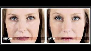 Phytoceramides Before And After