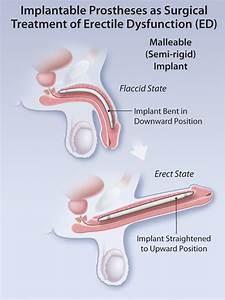 Surgical Management Of Erectile Dysfunction