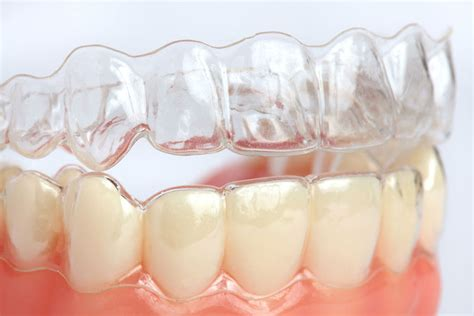 I have a broken jaw but can't get it fixed without braces and dental work it hurts? answered by dr. Does Insurance Cover Invisalign Clear Braces in NYC?
