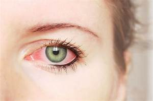 Pink Eye Causes And Treatment