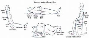 31 Pressure Ulcer Sites Diagram