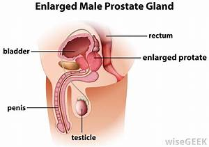 What Is The Effect Of A Vasectomy On The Prostate
