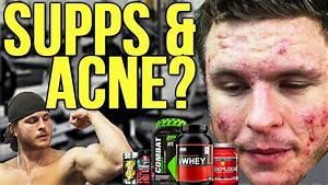 Which Bodybuilding Supplements Cause Acne Creatine Protein Etc