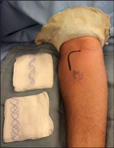 Diagnosis And Management Strategies For Distal Biceps Rupture