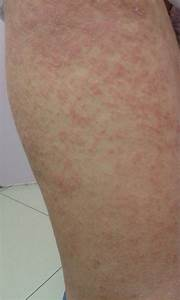 Doctos Note Rashes Expresscare Guam Clinic Doctors For Medical