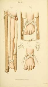 Manual Of Surgical Bandages  Devices And Dressings  1859