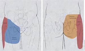 Hip Pain Radiating To Abdomen