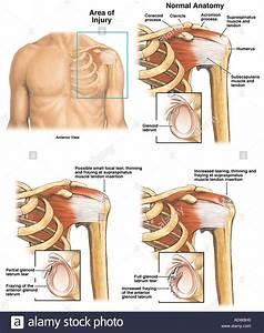 Left Shoulder Rotator Cuff Tear Stock Photo  7712527