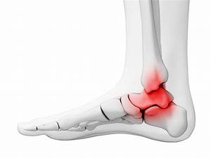 Overview Of Ankle Osteoarthritis