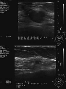Left Breast Subareolar Biopsy