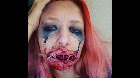 foto de Mouth sewn shut YouTube