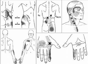 Mtrp Referred Pain Patterns  Reproduced With Permission