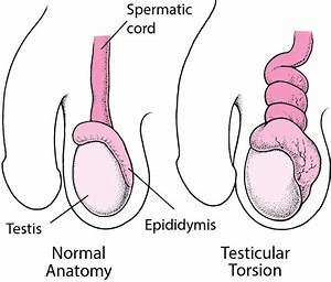 Testicular Torsion - Men U0026 39 S Health Issues