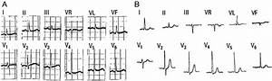 A  Electrocardiogram With Dominant R Wave In Right