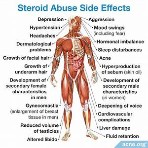 Do Anabolic Steroids Cause Acne