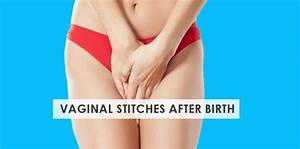 Vaginal Stitches After Birth  U2013 Ultimate Care Guide