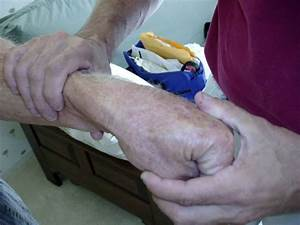 17 Best Images About Hand Therapy On Pinterest