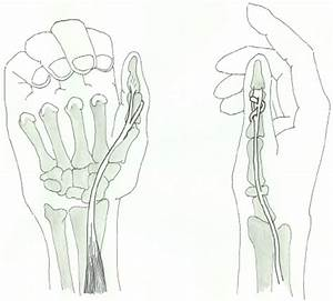 Distal Tenodesis Of A Long Thumb Flexor Tendon For A Stabilization Of
