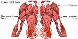 Lower Back Pain - The Complete Injury Guide