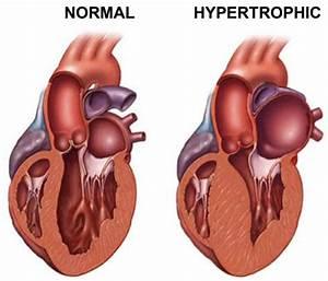 Professor Links Gene Mutations With Heart Disease ...