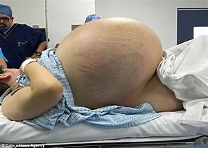 Mexican woman has growth removed after it weighed 5st ...