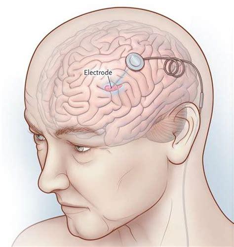 Zbulimi i hershëm i sëmundjes se Parkinsonit nepermjet ...