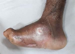 The Diabetic Foot Examination