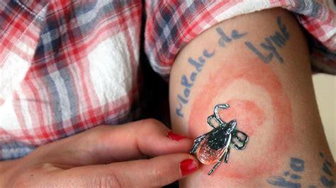 foto de Maladie de Lyme : errance dans les salles d attente