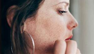 What Causes Nose Pimple  U0026 How Can I Treat It   9 Zero Cost