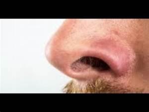 Se Débarrasser Des Guepes Maçonnes : comment se d barrasser des poils de nez disgracieux le magazine de la sant youtube ~ Carolinahurricanesstore.com Idées de Décoration