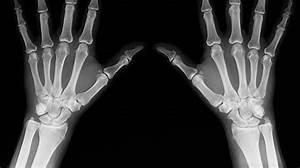 A New Procedure Called  U0026 39 Bio Patch U0026 39  Regrows Damaged Bones