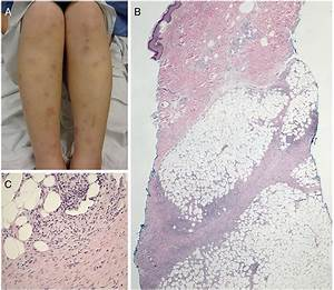 Lymphocytic panniculitis: an algorithmic approach to ...